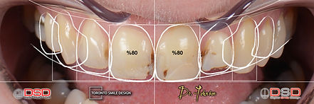 Toronto Cosmetic Dentistry - Smile Trans