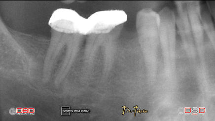 Toronto Root Canal - Toronto Dentist - Root Canal Treatment.jpeg