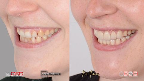 toronto best cosmetic dental specialist toronto veneers before and after