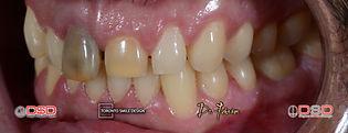my teeth are so yellow - diastema - teet