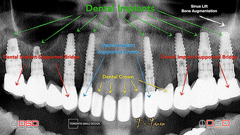 Full Mouth Rehabilitation - Cosmetic Dentist Toronto - Toronto Dental Clinic.jpeg