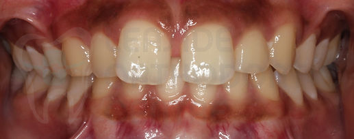 orthodontic case 4 before treatment intraoral dental picture toronto orthodontist Emel Arat's Case