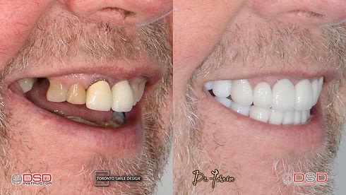 Cosmetic Dentistry Toronto Case 9 - Toronto Porcelain Crowns - Dental Right Side Portrait