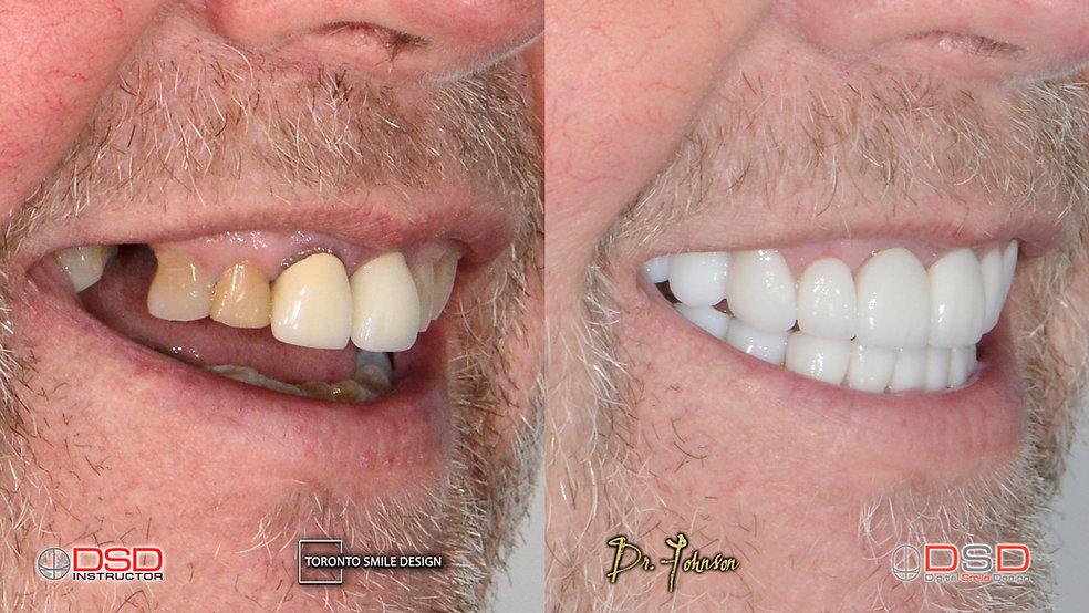 Cosmetic Dentistry Toronto Case 9 - Toro
