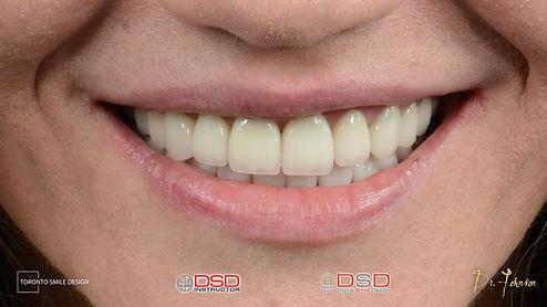 Toronto Smile Makeover After Smile Desig