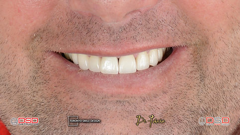 how to remove yellow stains from teeth i