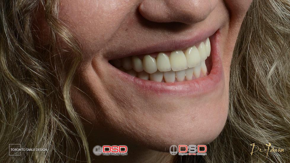 Toronto Dentist - Smile Makeover After Treatment - Dental Implant Toronto After Smile Design