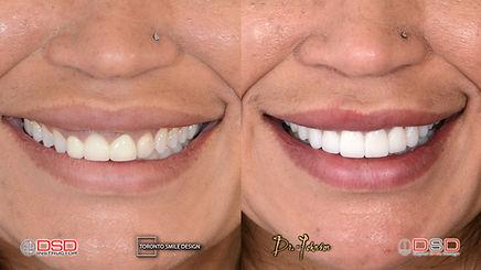 Cosmetic Dentistry Toronto - Smile Design Toronto - Porcelain Crowns Toronto.jpeg