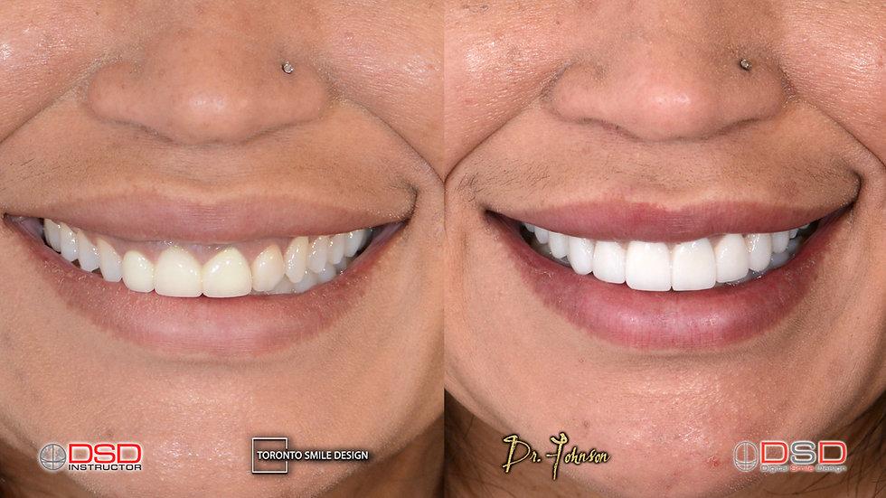 Cosmetic Dentistry Toronto - Smile Desig