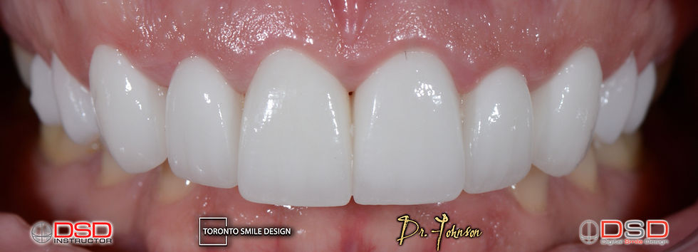 Smile Design Toronto - Cosmetic Dental T