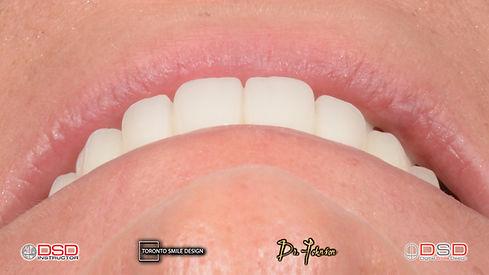Oral surgeon toronto - Yorkville Oral Surgeon - Dental Implants Toronto.jpeg