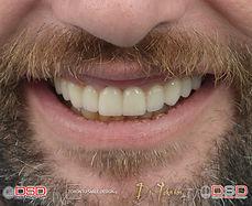 Cosmetic Dentistry Toronto - Smile Makeo