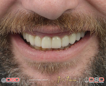 Smile Design case by Toronto Ceramic Crown and Porcelain Veneers by Cosmetic Dentist Dr.Johnson