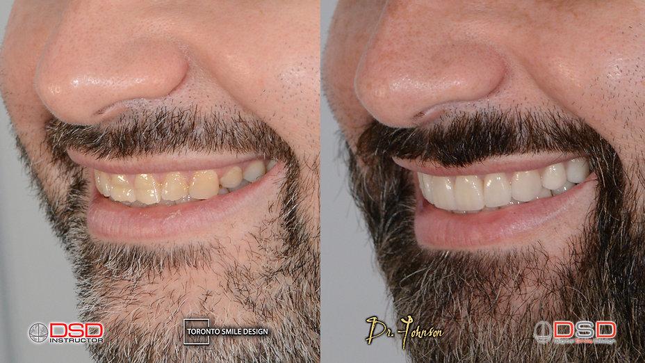Veneer Toronto - Cosmetic Dentist - Worn out Teeth.jpeg