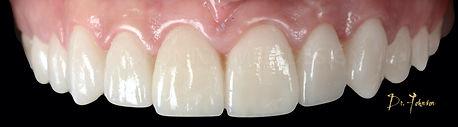 Do veneers ruin your teeth? - After Porcelain Veneer Application