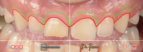 Crown Lengthening - how much is crown le