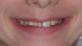 before portrait pictures of orthodontic missing teeth case