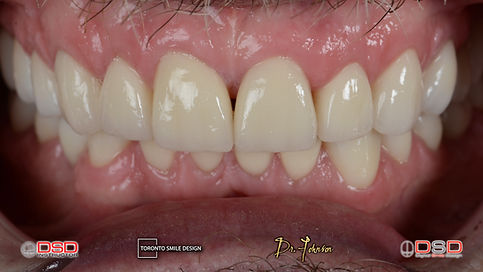 Smile Transformation and Smile makeover with Dental bridges and Dental Crowns after treatments intra-oral pictures