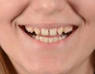 Oral Surgeon Toronto - Toronto Dentist - Smile Design Before