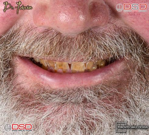 Dental Crown - Toronto Dentist - Smile Transformation Before Photo