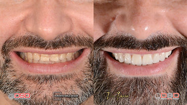 Veneer Toronto - Cosmetic Dentist - Crown Lengthening.jpeg