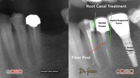 Root Canal Cost - Toronto Root Canal.jpeg