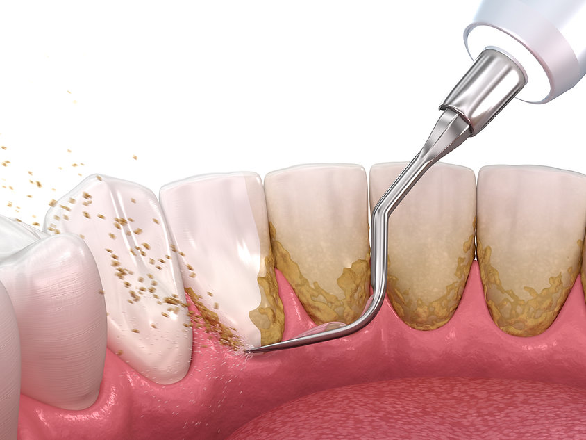 Teeth Cleaning Toronto