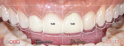 Toronto Cosmetic Dentist - Toronto Venee