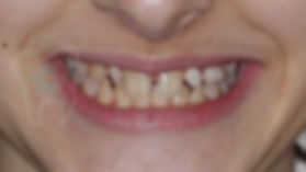 BEFORE THE TREATMENT - Orthodontic Case Before treatment whole smile portrait picture of orthodontic patient