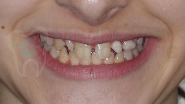 Orthodontic Case Before treatment whole smile portrait picture of orthodontic patient