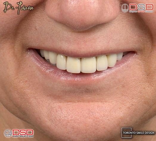 Toronto Dental Implants - Best Dental Implants Toronto .jpeg