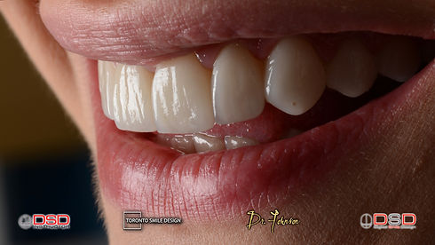 Crown Lengthening - gum contouring recovery time.jpeg