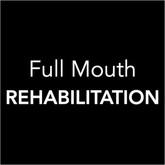 Full Mouth Rehabilitation - Toronto Dentist