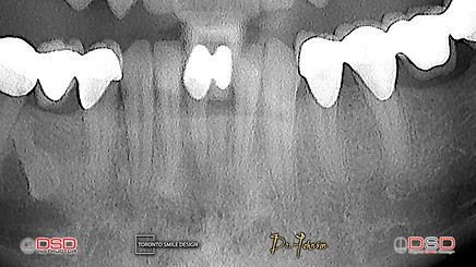 Root Canal Treatment - Tooth Sensitivity - Toronto Root Canal Cost.jpeg