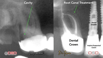 Root Canal - Tooth Pain.jpeg