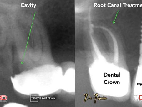 Dental Emergency - What if I break a Tooth