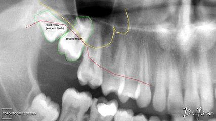 dry socket wisdom teeth - wisdom tooth e