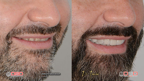 Veneer Toronto - Cosmetic Dentist - Dental Crowns.jpeg