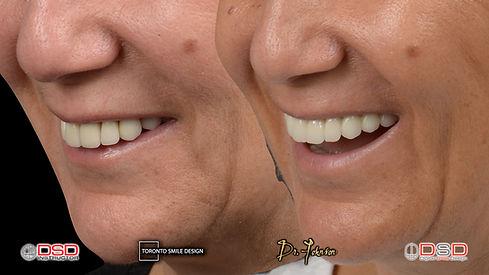 oral surgeon toronto - dental implants toronto.jpeg