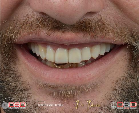 Smile Makeover Toronto - Moc Up - Porcel