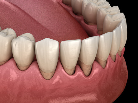Sensitive Tooth and Tooth Root Exposure