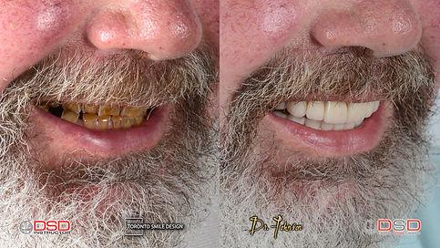 Dental Bridge - Before and After Smile Makeover - Toronto Smile Transformation