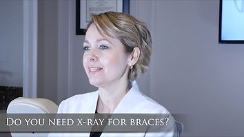 Do you need x-ray for braces.jpg