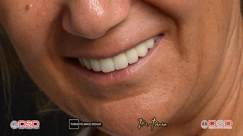 Oral Surgeon Yorkville - Dental Implants - Toronto Dental Implants.jpeg
