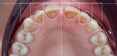 aralık dişlerde boşluklar gülüş tasarımı ile nasıl kapanır.