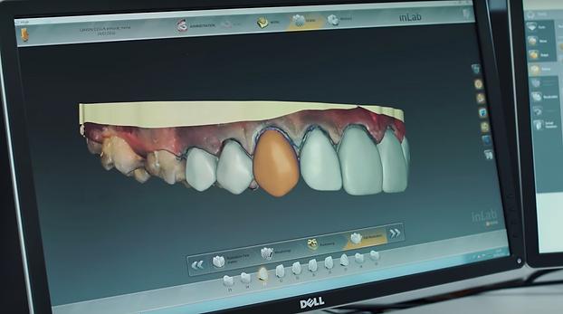dijital gülüş tasarımı- smile design- diji