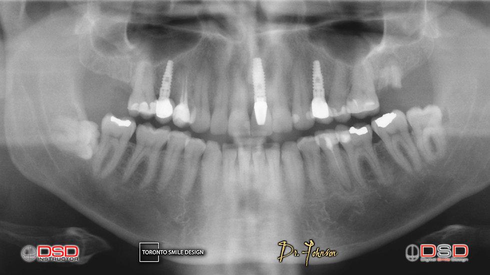 dental implants toronto - toronto oral surgeon.jpeg