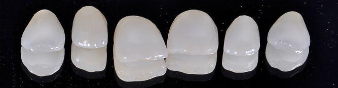 gülüş tasarımı için ortodonti sonrası laminate veneer