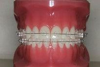 orthodontics-removable-appliances-3.jpg