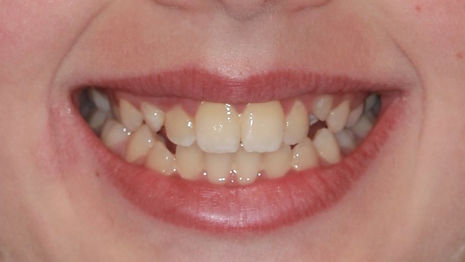 CASE 5 of the week - Before Orthodontic Treatment Smile Extraoral Picture